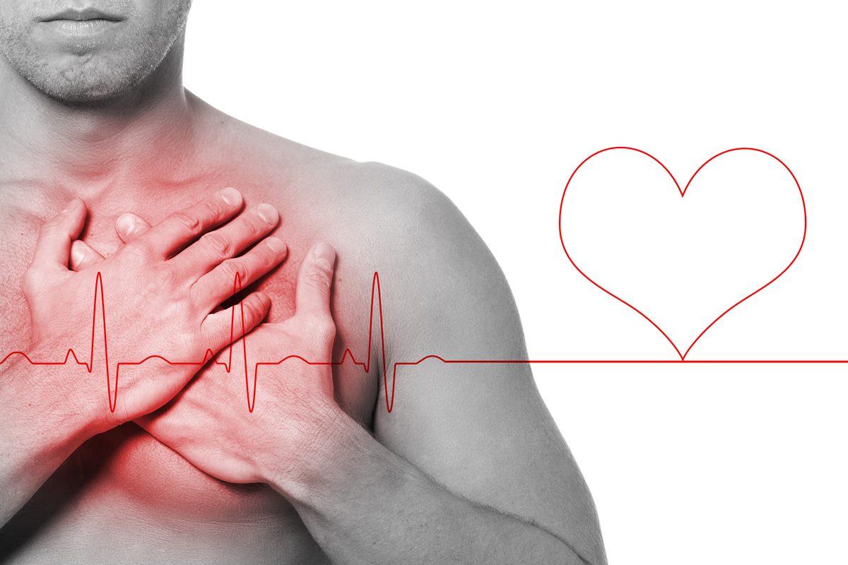infarto-1-1200x800.jpg