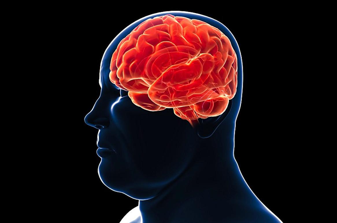 obesità-e-cervello-1.jpg