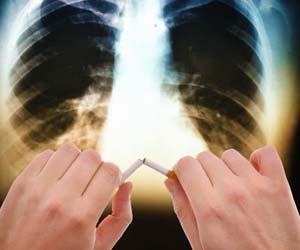 fumo-di-sigaretta-tumore.jpg